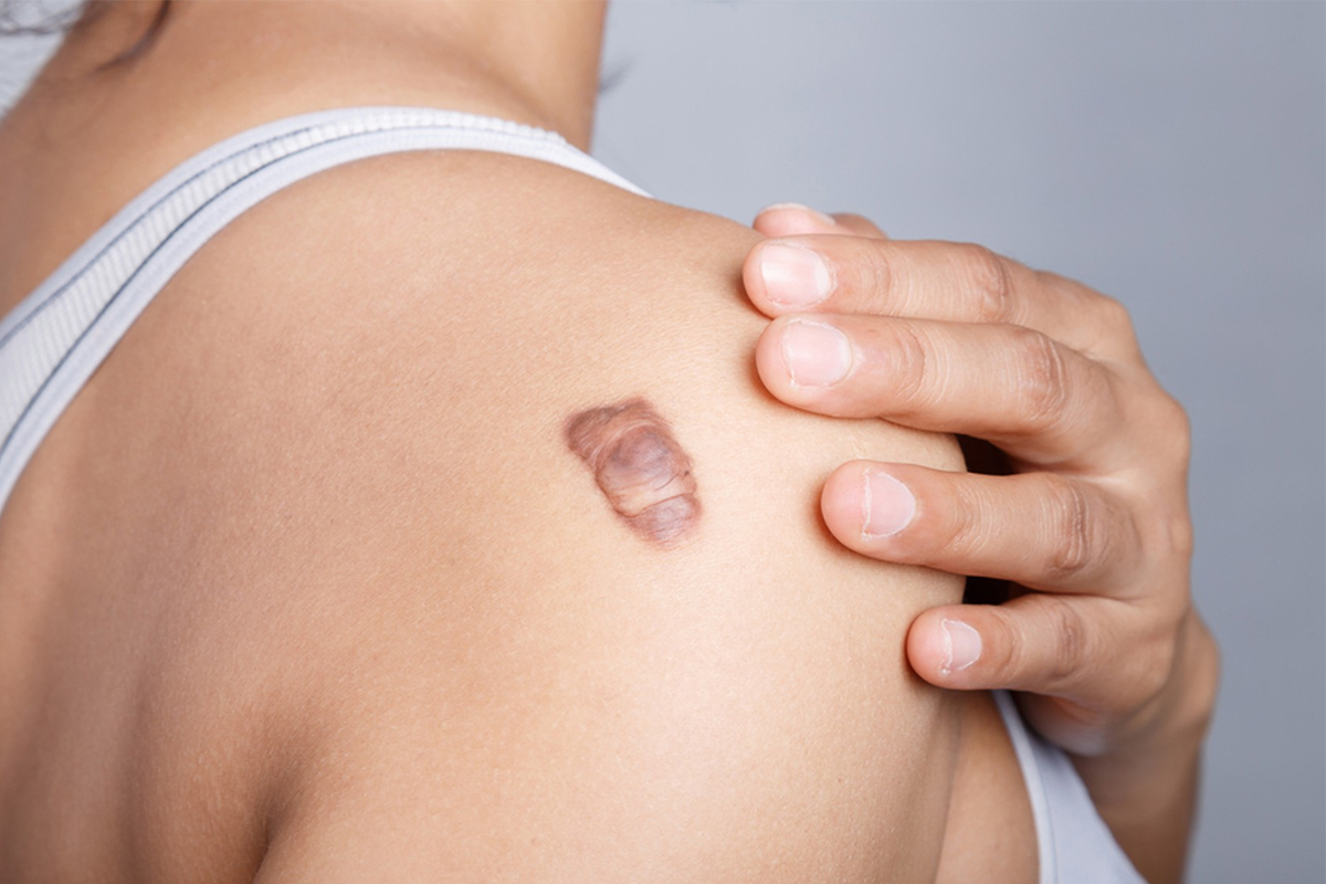 Scars and Keloid Treatment