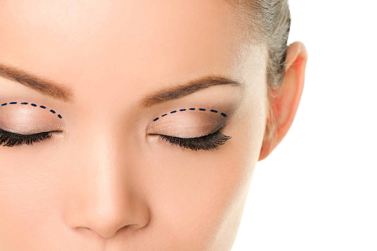 Brow Lift or Upper Eyelid Lift Surgery