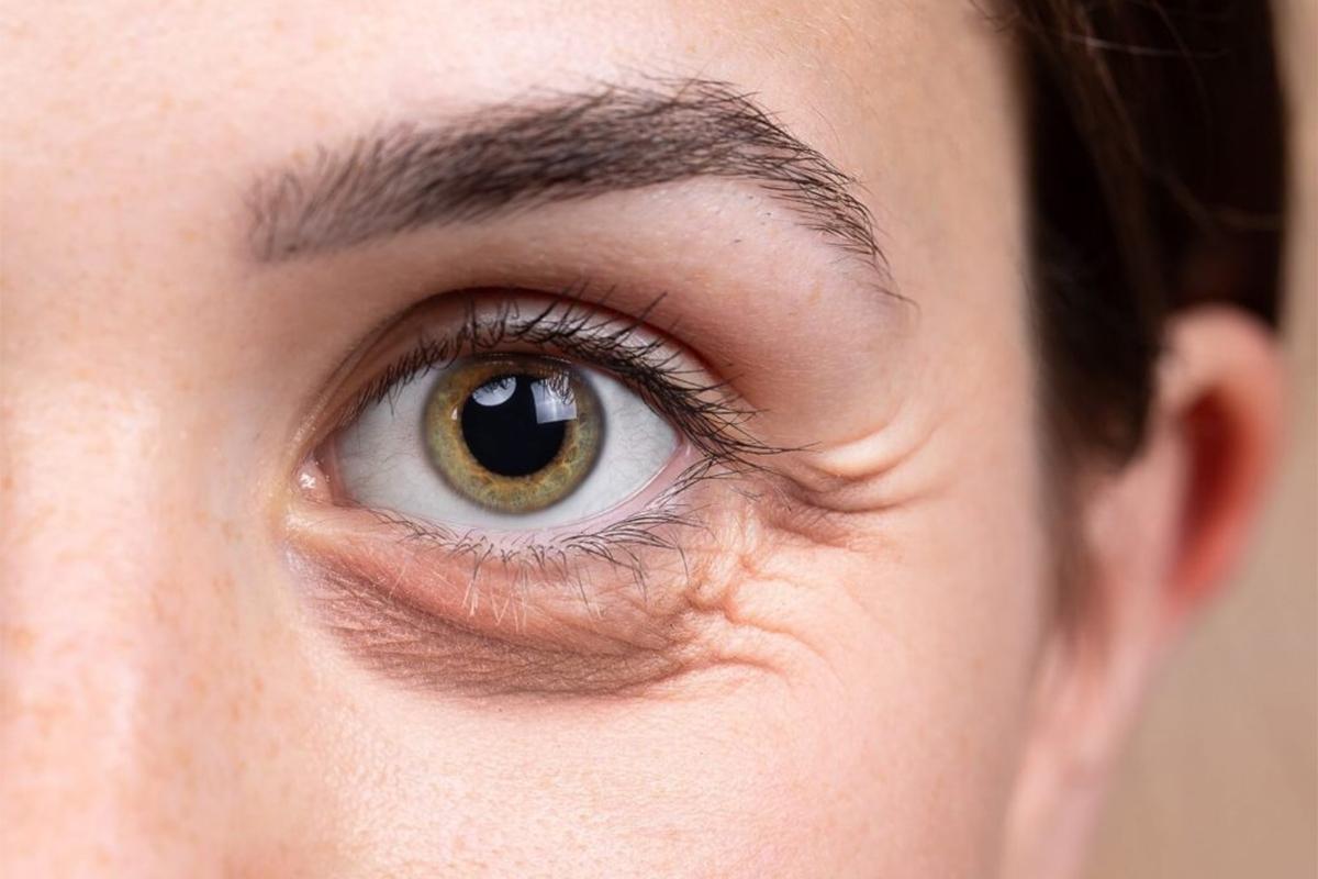 Eye Bag Removal Surgery – Lower Blepharoplasty