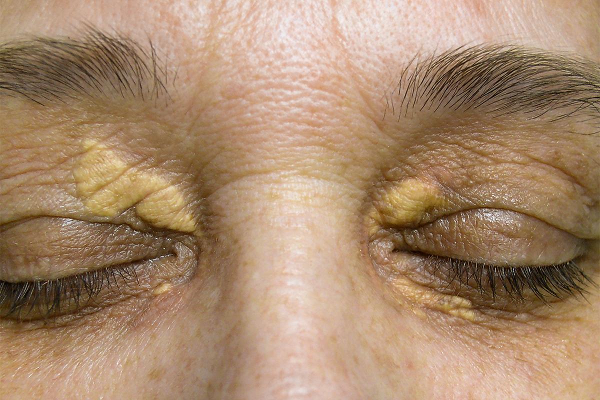 Xanthelasma Eyelids